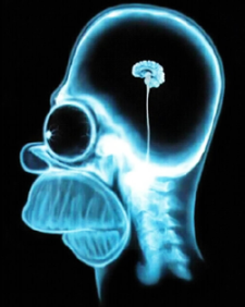homer-simpson-brain-scan