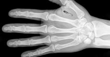 rfid-chip-hand